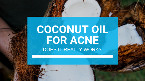 Coconut Oil for Acne: Does It Really Work?