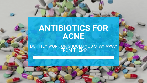 Antibiotics for Acne: Do They Work or Should You Stay Away from Them?