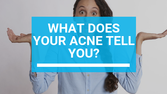What Does Your Acne Tell You?