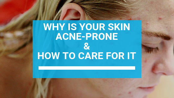 Why Is Your Skin Acne-Prone & How to Care for It
