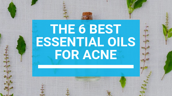 The 6 Best Essential Oils for Acne