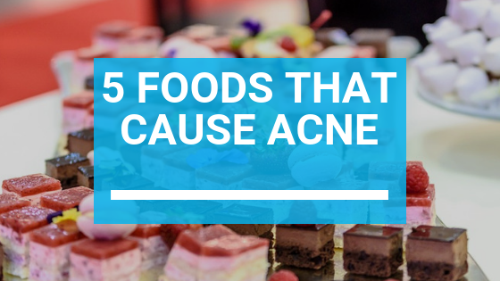 5 Foods That Cause Acne