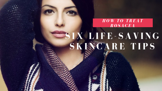 How to Treat Rosacea: Six Life-Saving Skincare Tips