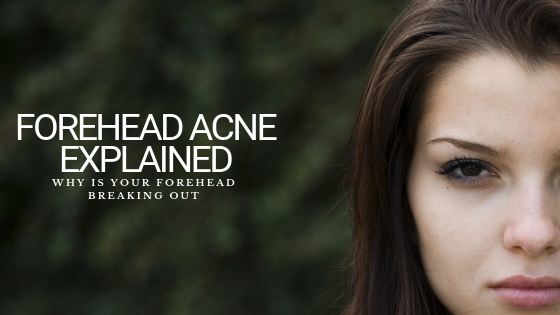 Why Is Your Forehead Breaking Out: Forehead Acne Explained