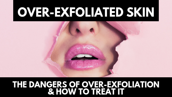 Over-Exfoliated Skin: The Dangers Of Over-Exfoliation & How To Treat It