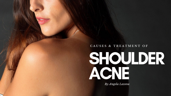 Shoulder Acne: Causes and Treatment