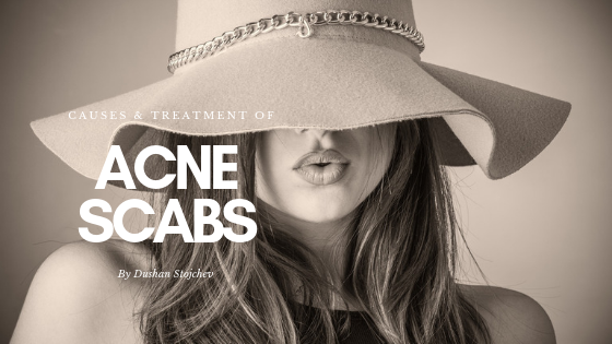 Acne Scabs: Causes And Treatment