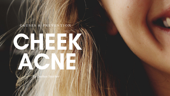 Cheek Acne: Causes And Prevention