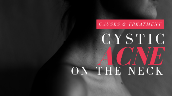 Cystic Acne On The Neck: Causes & Treatment