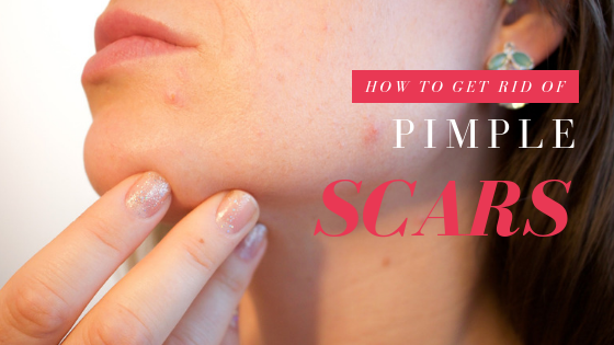 Pimple Scars: How To Get Rid Of Them