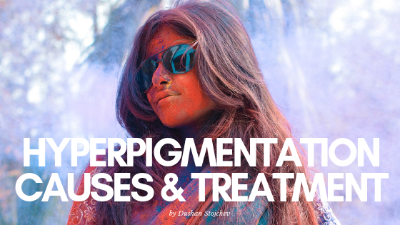 Hyperpigmentation: Causes & Treatment