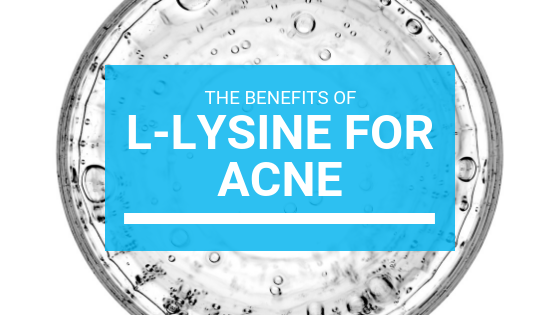 The Benefits of L-Lysine For Acne