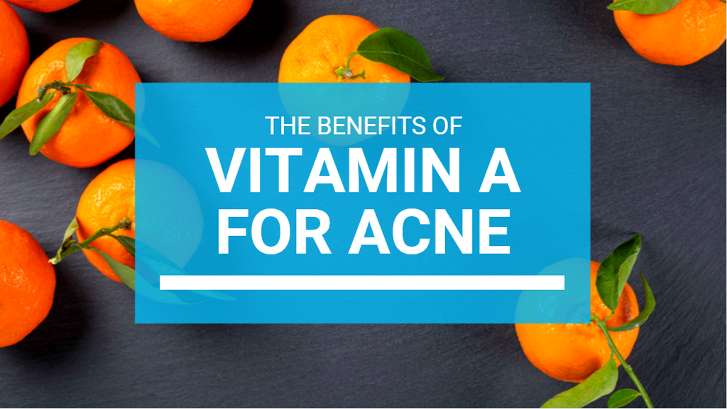 Vitamin A For Acne