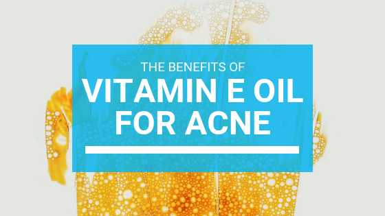 Vitamin E Oil For Acne