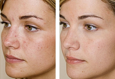 Imagini pentru skin clear before and after