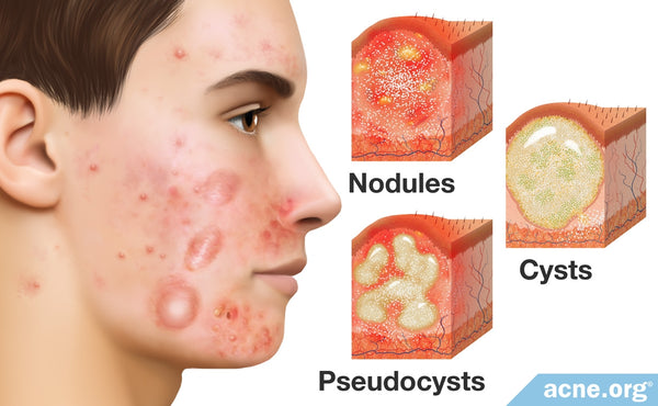 Image result for cystic acne