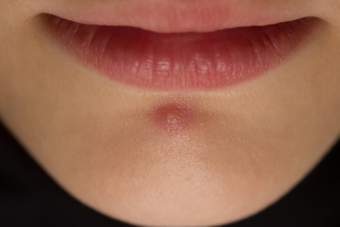 How To Get Rid Of Cystic Chin Acne Misumi Luxury Beauty Care