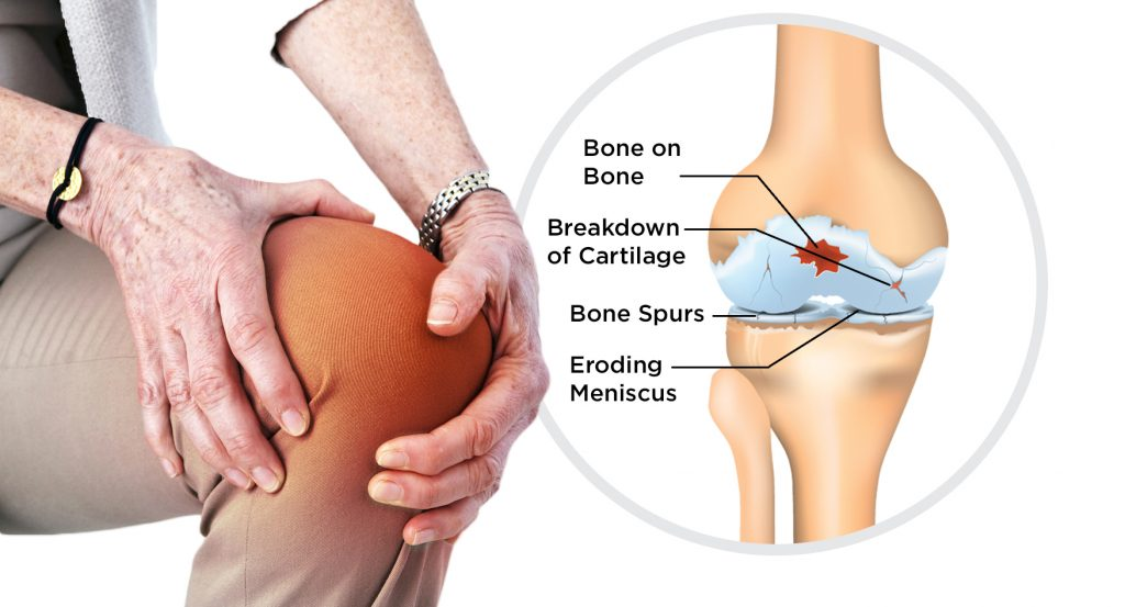 Osteo-Arthritis and Knee Pain