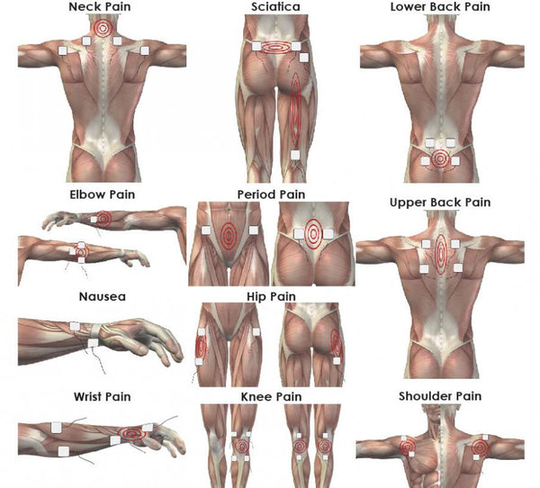 Understanding TENS for Pain Relief
