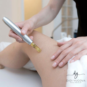 Cellulite treatments