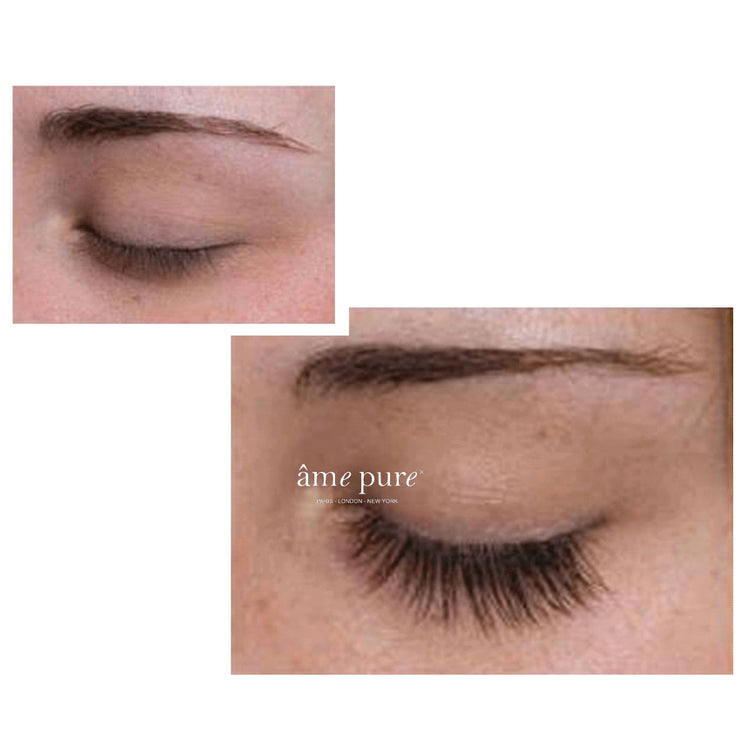 Lash Boost™ | Wimpernserum