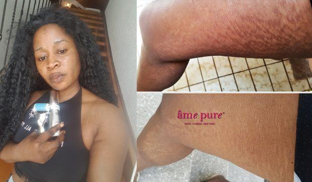 Erase stretch marks and build up your confidence!