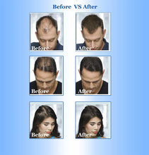 Load image into Gallery viewer, Fast Hair Growth for men and woman