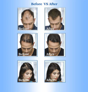 Fast Hair Growth for men and woman