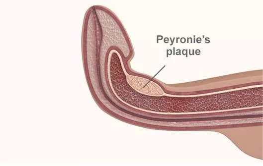 Andropeyronie ProCurvature Correction and Peyronies review 2018