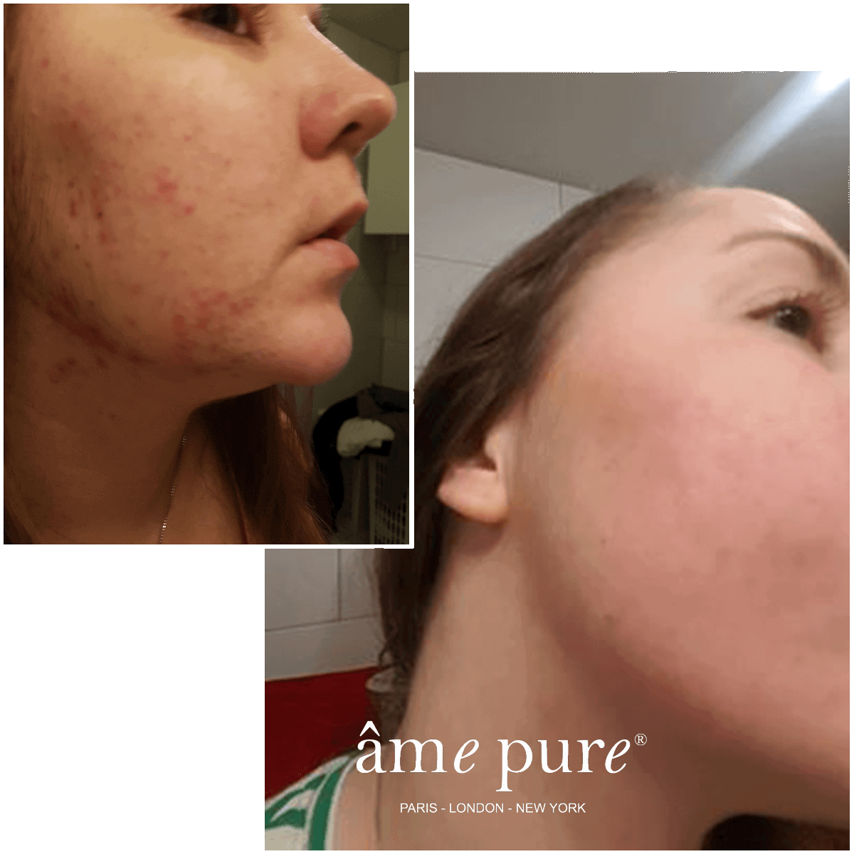 6- Helen before/after âme pure Roller