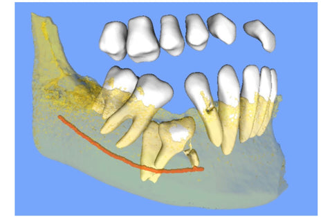 Buccal view of STL (AI) shows detail of submerged and impacted teeth and mandibular nerve relationship in Quadrant #4