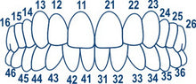 Dental Posterior Transparent Crowns Matrices Matrix 64 pcs. TOR VM 1.911