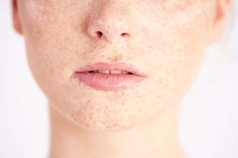 Photo of girl's face with freckles