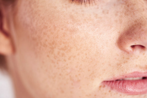 What Is A Microbiome & Why Should You Care About It If You Have Acne? | Microbiome | Perricone MD