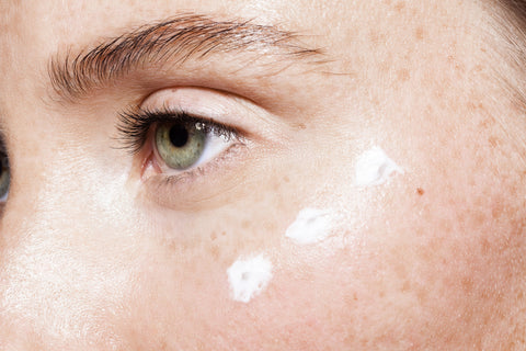 Photo of woman with cream applied under her eye