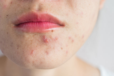 Photo of a face with acne