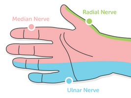 CARPAL TUNNEL SYNDROME OR JUST WRIST PAIN?