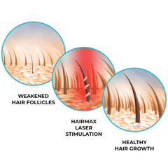Ultima 9 Classic LaserComb hair growth