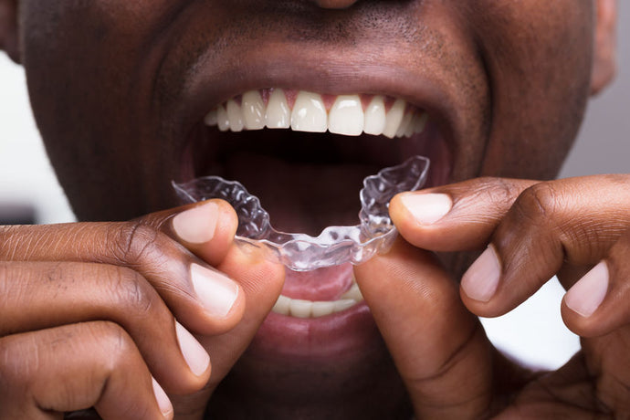 Teeth grinding and transparent dental splints – is that possible?