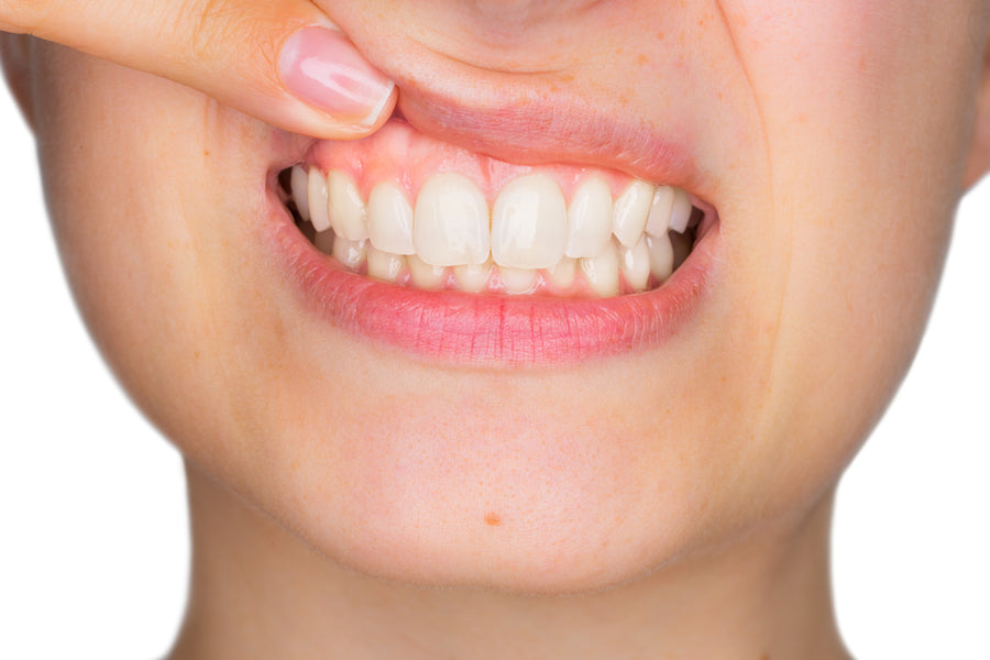 Gums – The ''Skin'' of our Teeth