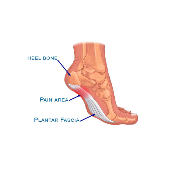 The Pain Free Way To Handle Plantar Fasciitis Vitago Life
