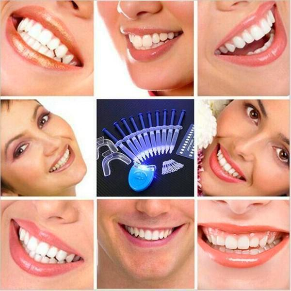 30 Minute Teeth Whitening Kit