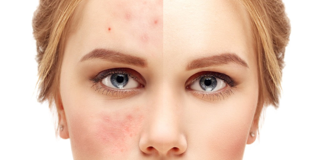 young woman's face half with acne half without acne