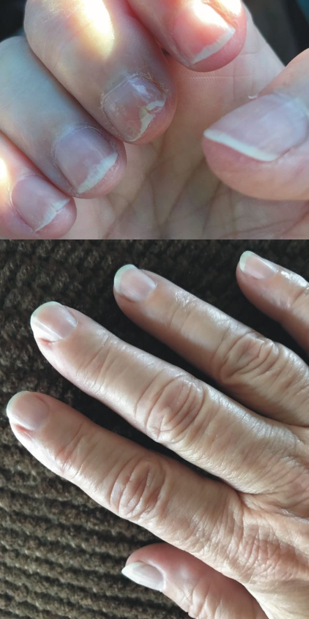 Nails in my Ridges in