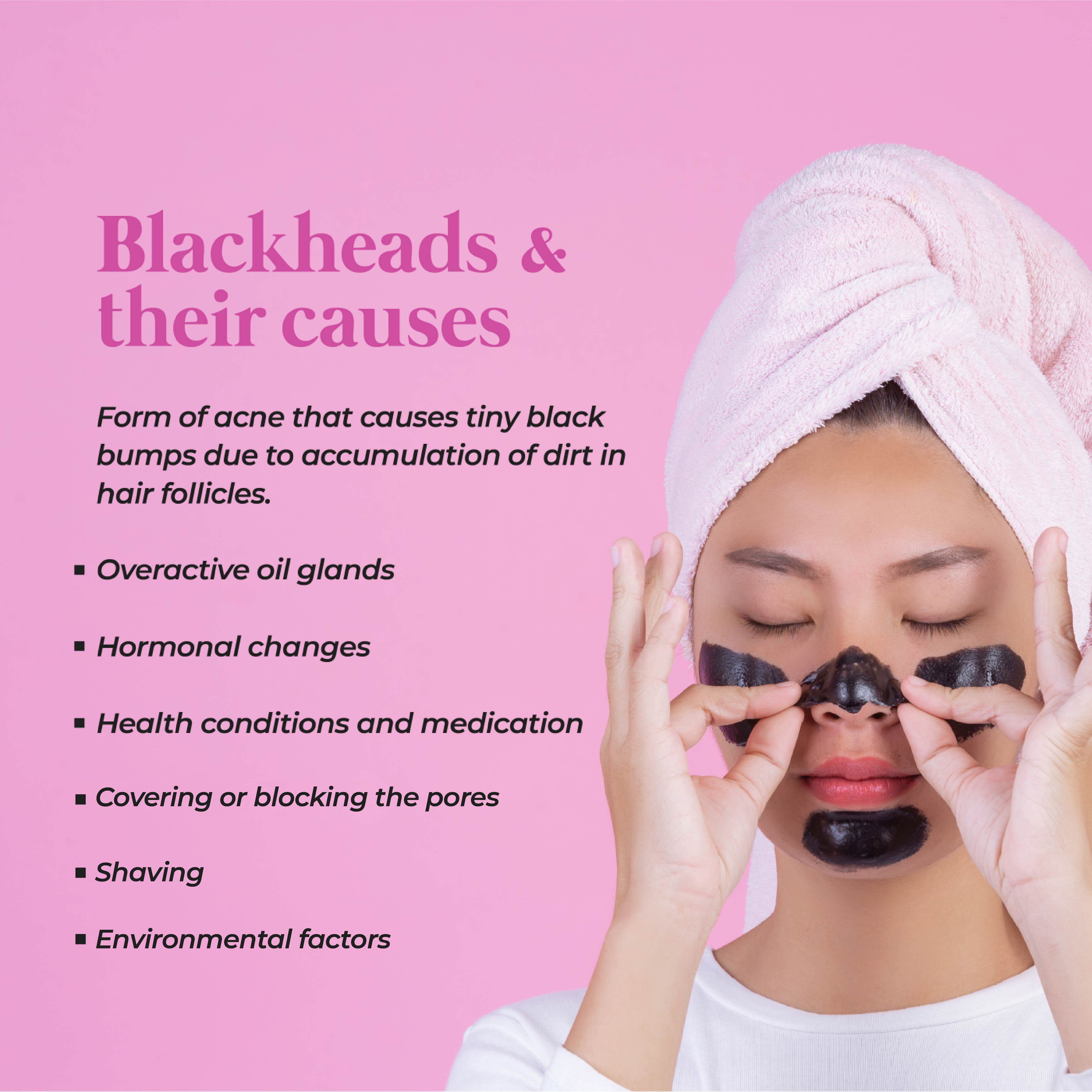 This is an image of what are blackheads and their causes