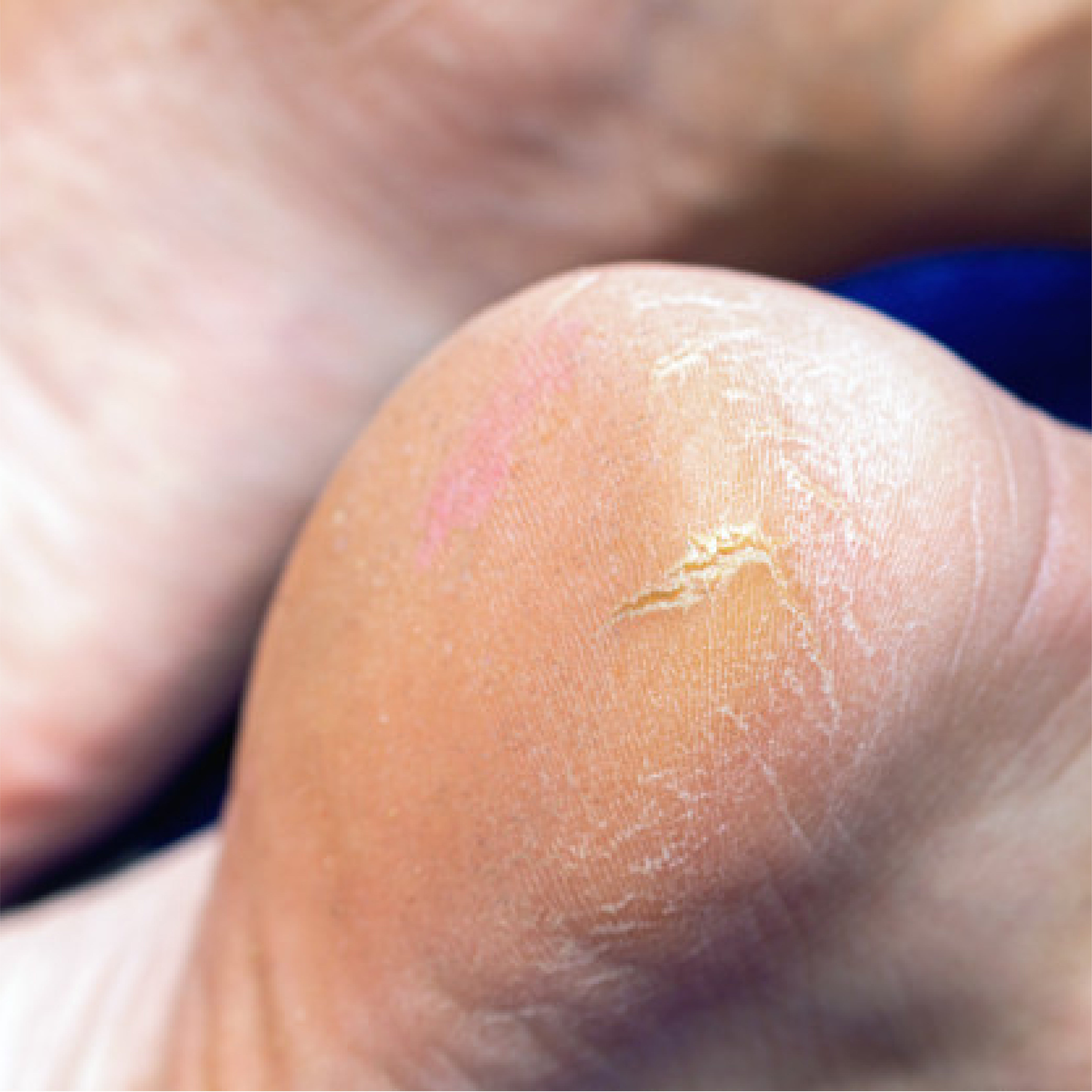 This is an image of cracked feet on www.sublimelife.in