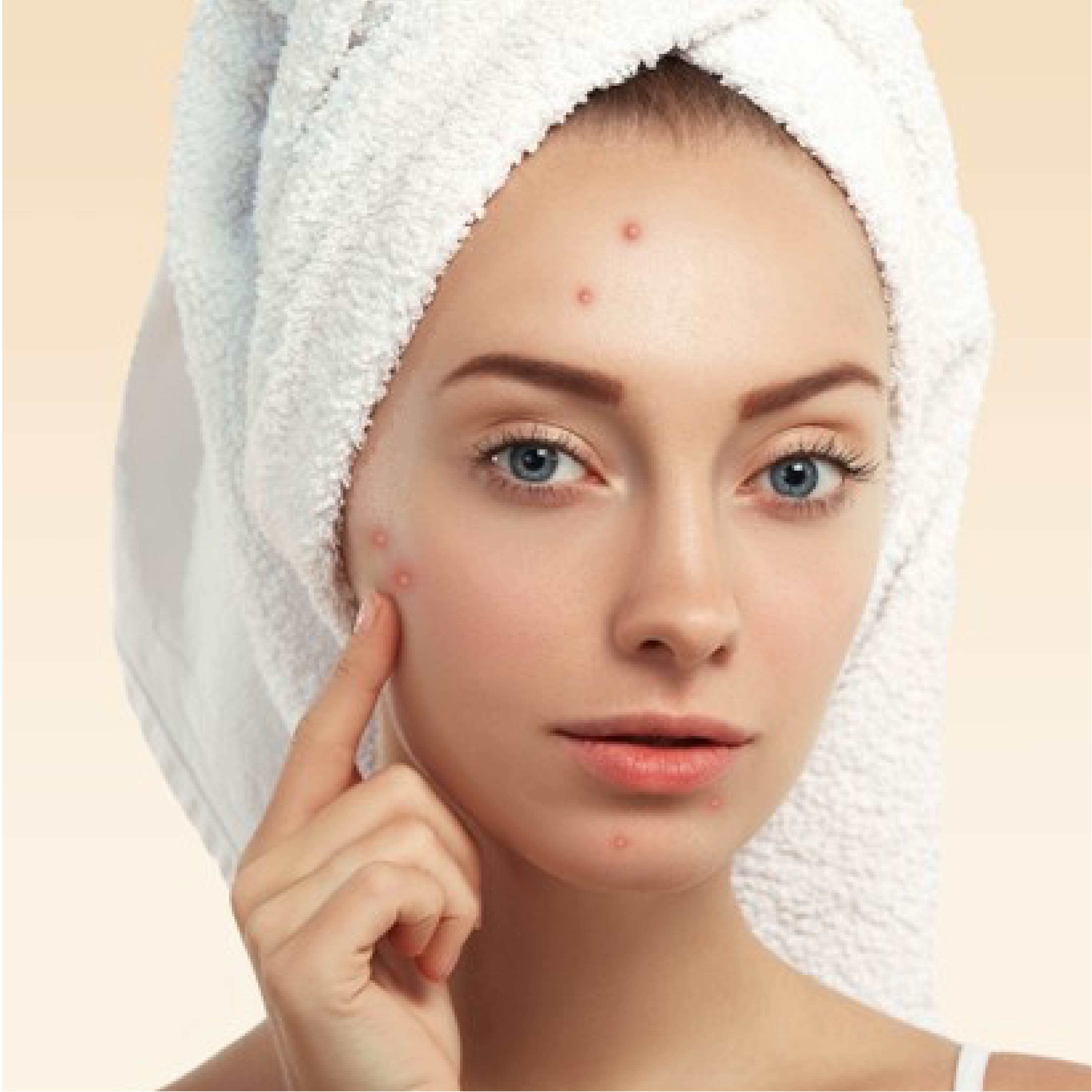 This is an image of fungal acne over skin on www.sublimelife.in