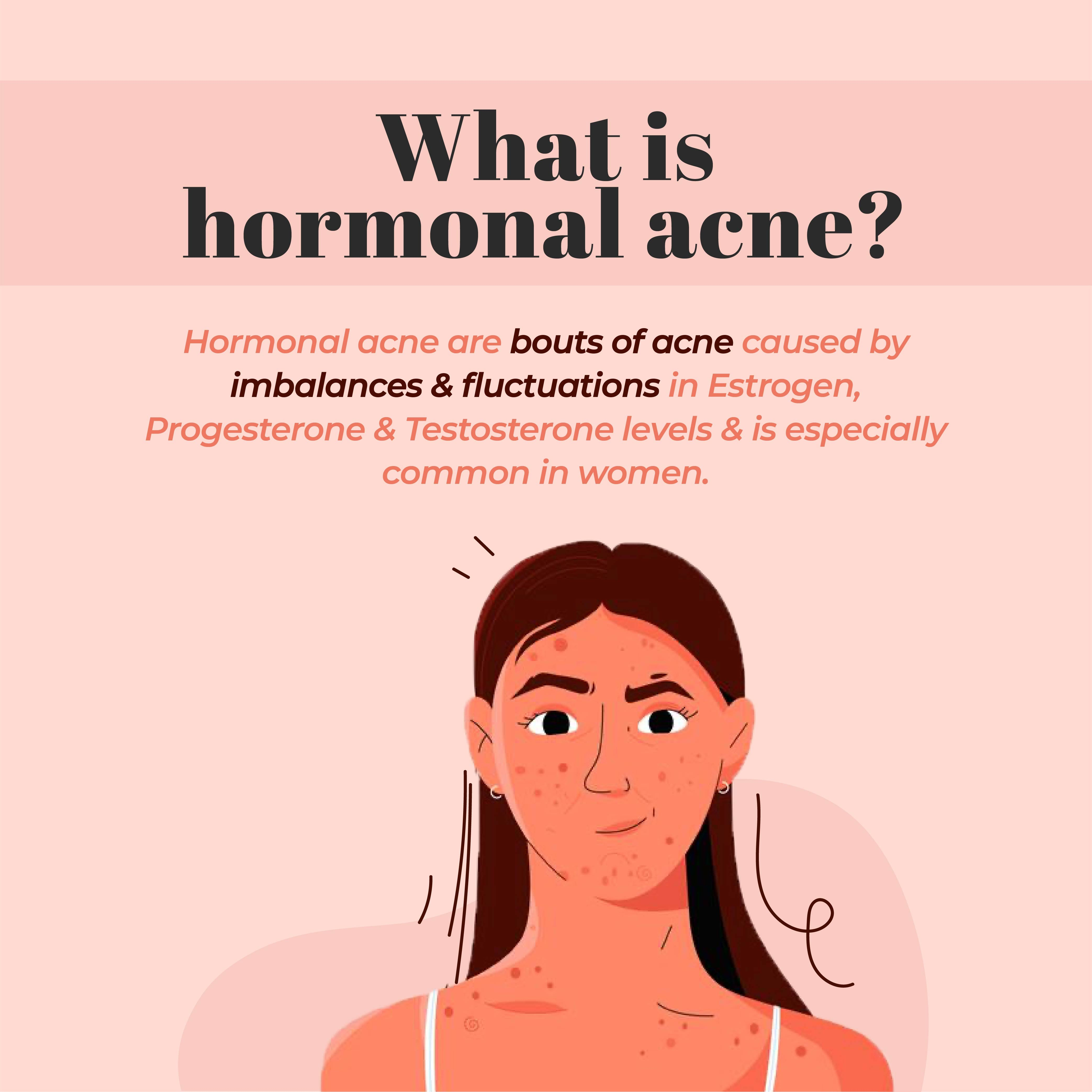 This is an image of what is hormonal acne