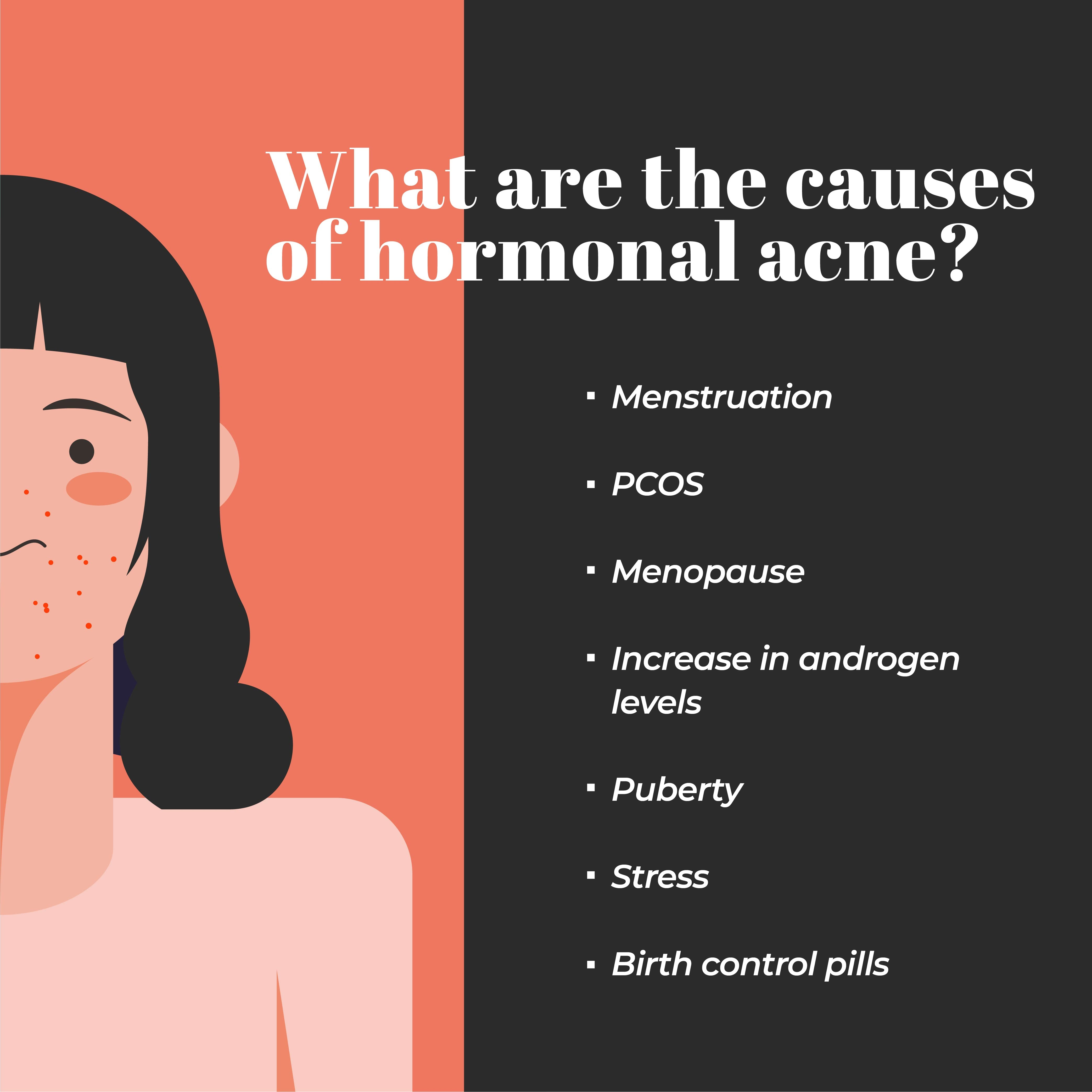This is an image of the reasons of hormonal acne