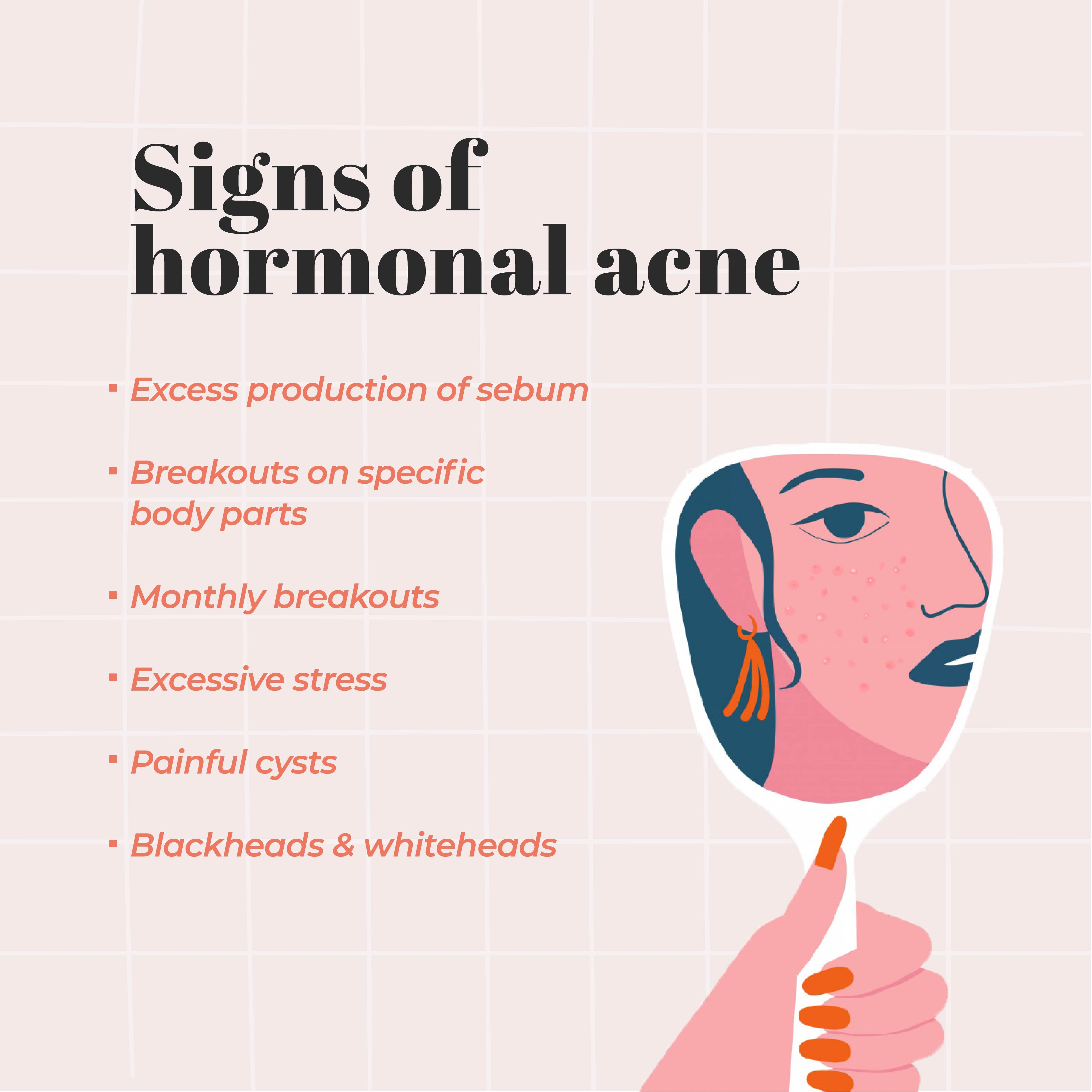 This is an image of the signs of hormonal acne